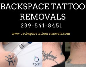 Backspace Tattoo Removals